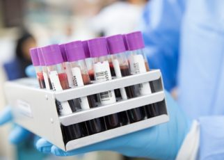 England Increases Covid-19 Testing To 100K People A Day