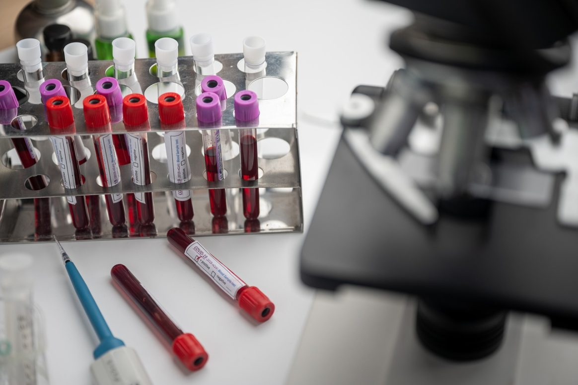 UK Approves Clinical Trials To Use Plasma To Treat COVID-19